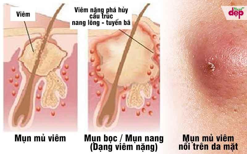 Nhận diện tất tần tật các loại mụn trên mặt