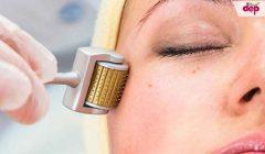 Những điều cần biết về lăn kim trị sẹo rỗ